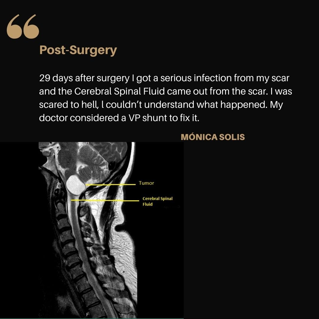 29 days later I got a serious infection from my scar and the CFS (Cerebral Spinal Fluid) came out from the scar I was scared to hell, l couldn't understand what happened? My doctor considered a VP shunt to fix it once for all.