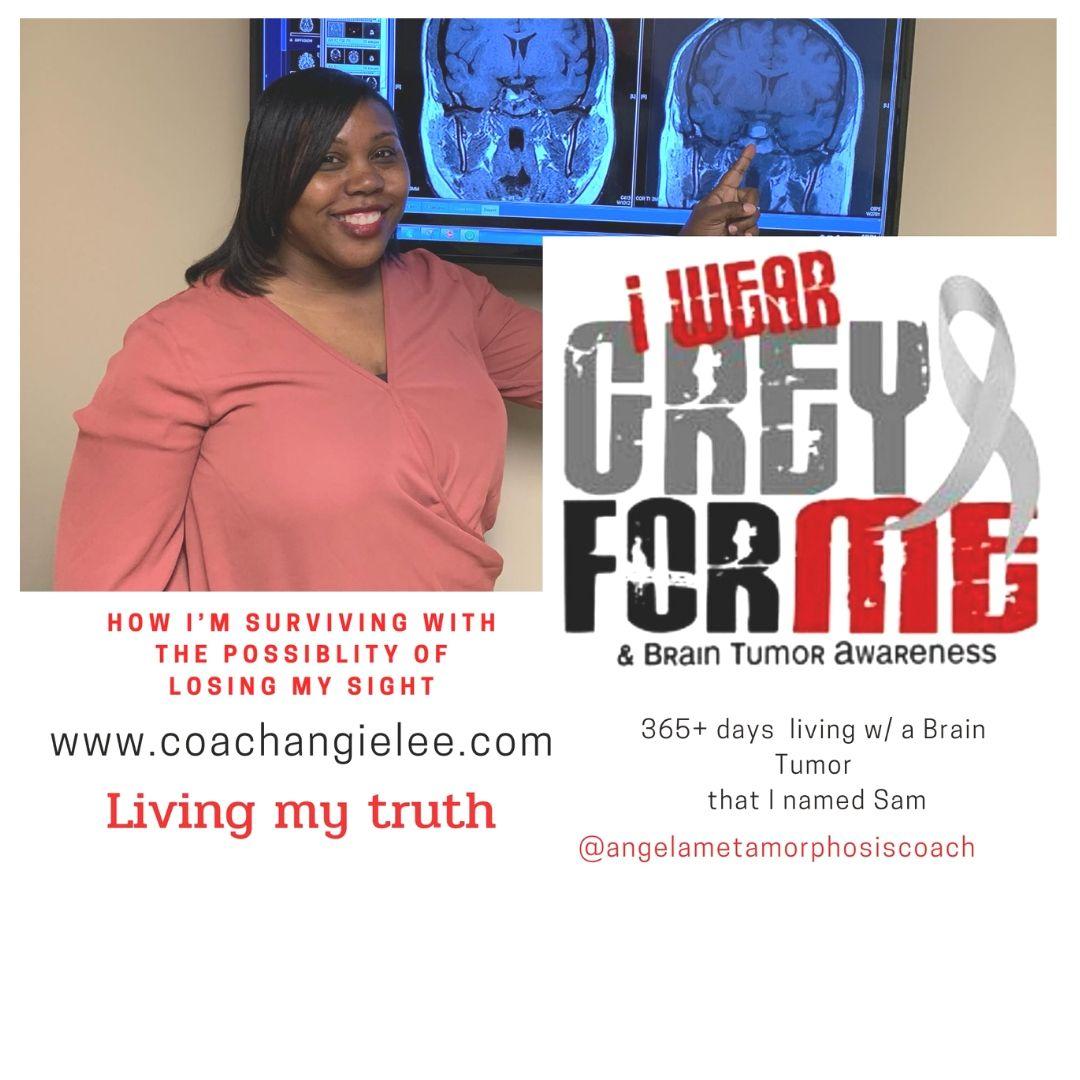 Angela Lee Pituitary Adenomas Story
