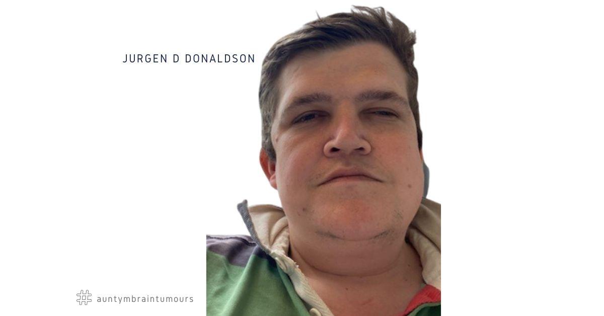 Jurgen D Donaldson, 35, from Balham, Southwest London lost his eyesight after having brain surgery to remove a Meningioma.